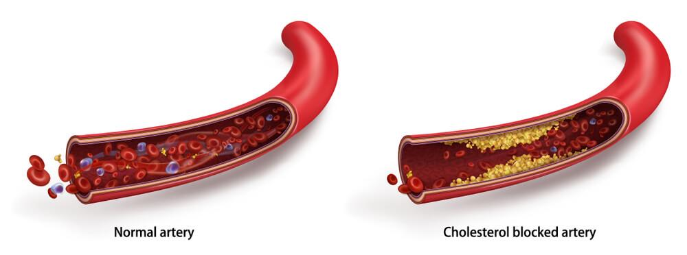 Cholesterol introduction-Blog Rainbow