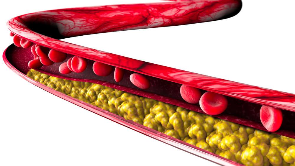 Triglycerides introduction-Blog Rainbow